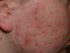 acne3