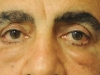 lower_blepharoplasty_before_1