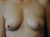 implant1