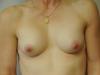 implant3b