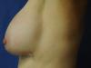 implant4