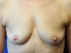 implants_2-1-1-400x334