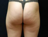 cellulite5