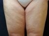 cellulite8