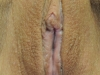 labiaplasty_after_1