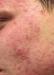 acne1