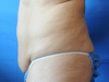 tummy11