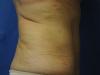 tummy16