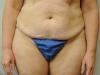 tummy5