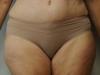 tummy6