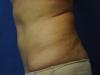 tummy12