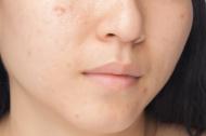acne scar_2
