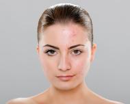 acne_1